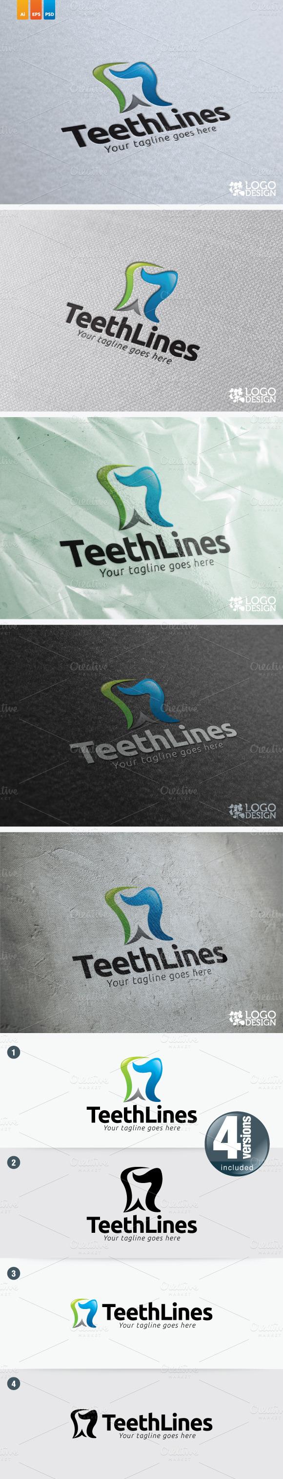 Teeth Lines